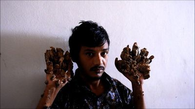 "Bangladesh ""Tree Man"" wants hands amputated to relieve pain"