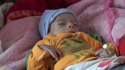 Yemen's starving children, a tragic legacy of war