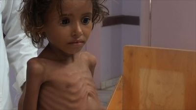 Aid org: 85,000 Yemeni kids may be dead of hunger