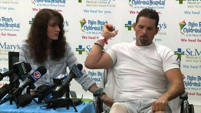 Florida man survives alligator attack