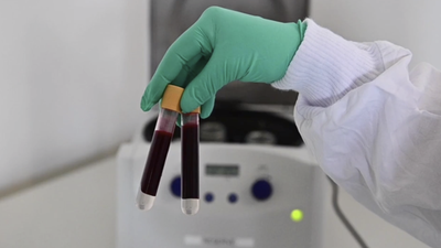 Blood Type May Affect Your COVID-19 Risk, Studies Suggest