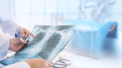 Mesoblast (ASX:MSB) see trials for COVID-19 lung distress