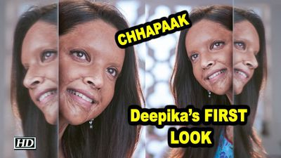 Deepikas FIRST LOOK as Acid Attack Survivor from CHHAPAAK