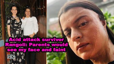 Acid attack survivor rangoli parents would see my face and faint