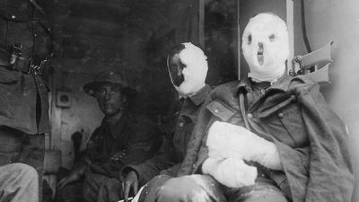 Mustard Gas' Unbelievable Role in the War on Cancer