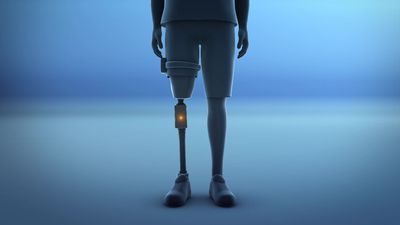 New bionic limb use electrodes, sensors for sensation