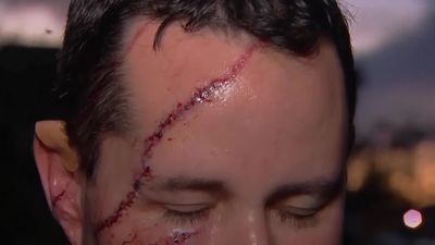 Man survives bear attack with 41 stitches