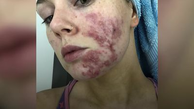 Acne sufferer overcomes trolls to share her journey