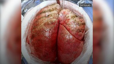 Severely damaged human lungs 'can be successfully recovered for transplant'