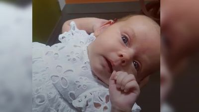 Deaf baby hears for the first time