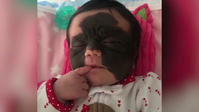Mum of baby with unique black 'batman' birthmark hits back at those calling the tot 'monster'