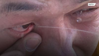 Kung Fu master learns art of spraying water from eye