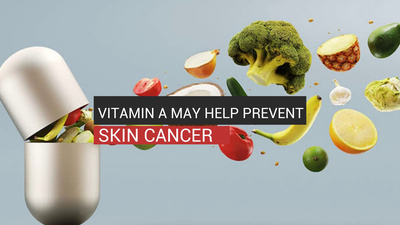 Vitamin A May Help Prevent Skin Cancer