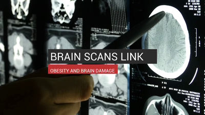 Brain Scans Link Obesity And Brain Damage