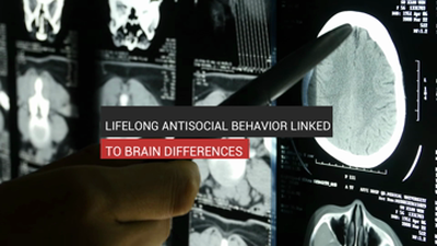 Antisocial Behavior Linked To Brain Difference