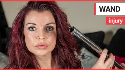 """Mum left """"scarred for life"""" after magic wand almost took her eye out"""