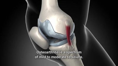 Total Knee Replacement For Osteoarthritis