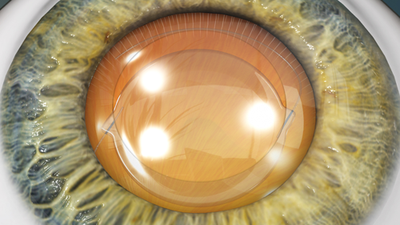 Cataract Removal (Phacoemulsification Method)