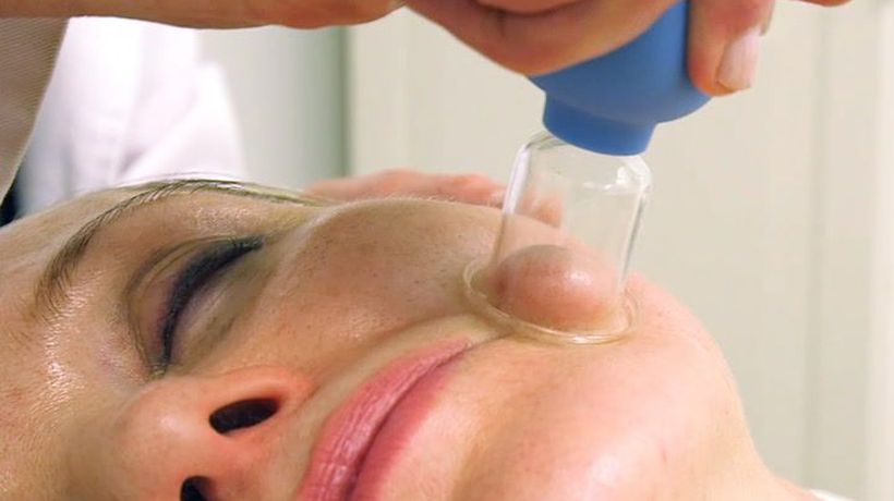 People are trying face cupping as an instant face-lift