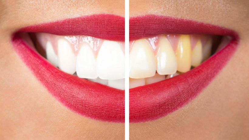 The difference between professional teeth whitening and at-home kits