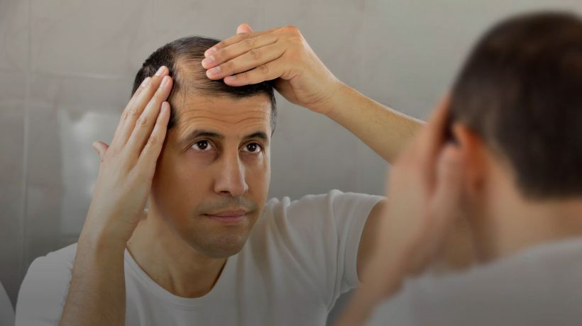 Try These Foods If You Are Suffering From Hair Loss