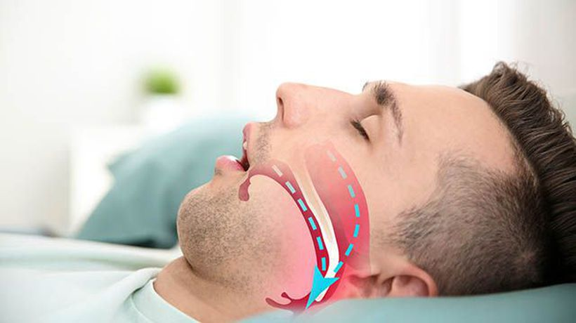 Fisher & Paykel Healthcare (ASX:FPH) releases new OSA Full Face Mask in USA