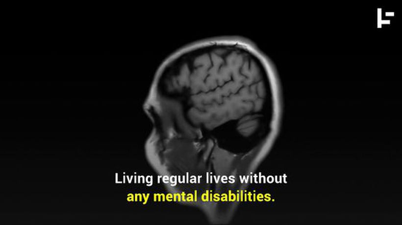 People Can Live While Missing a Huge Chunk of Their Brain