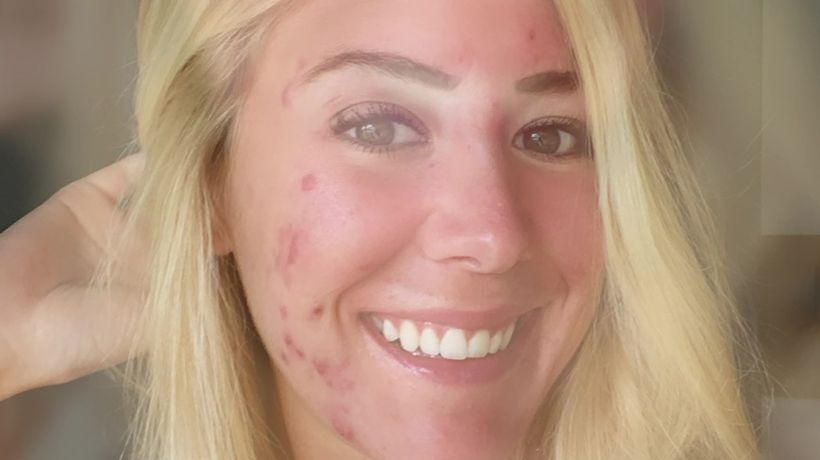 Woman who caked make up on since the age of 10 old bravely bares severe acne on Instagram