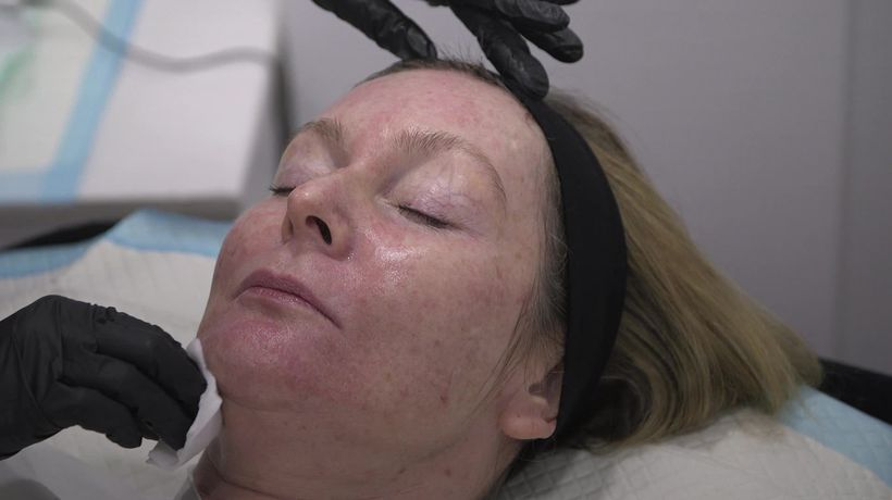 What is a PRP 'vampire facial'?
