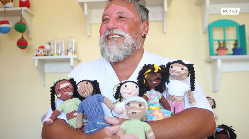 Grandfather crochets vitiligo dolls to teach kids body positivity
