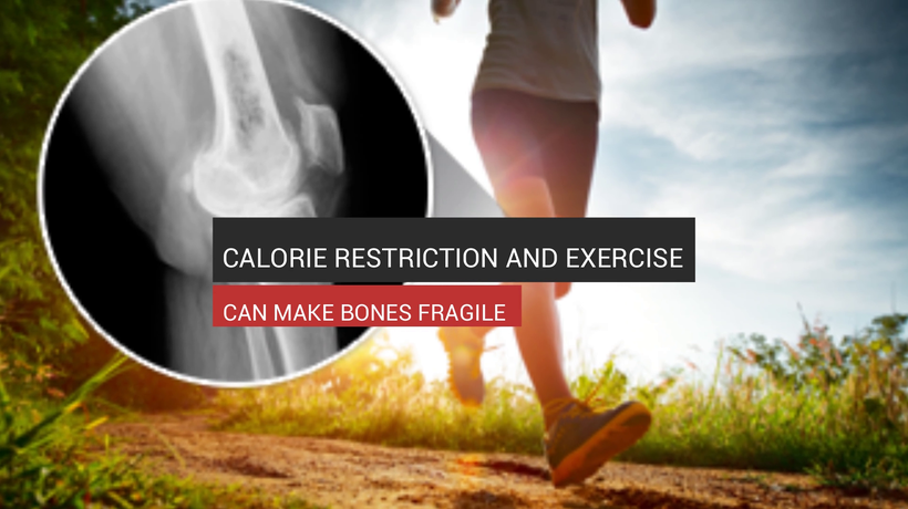 Low Calories And Exercise Can Make Bones Fragile