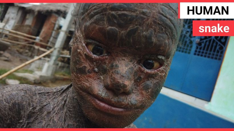 Ten-year-old boy dubbed 'human snake' because rare condition makes him shed skin every month