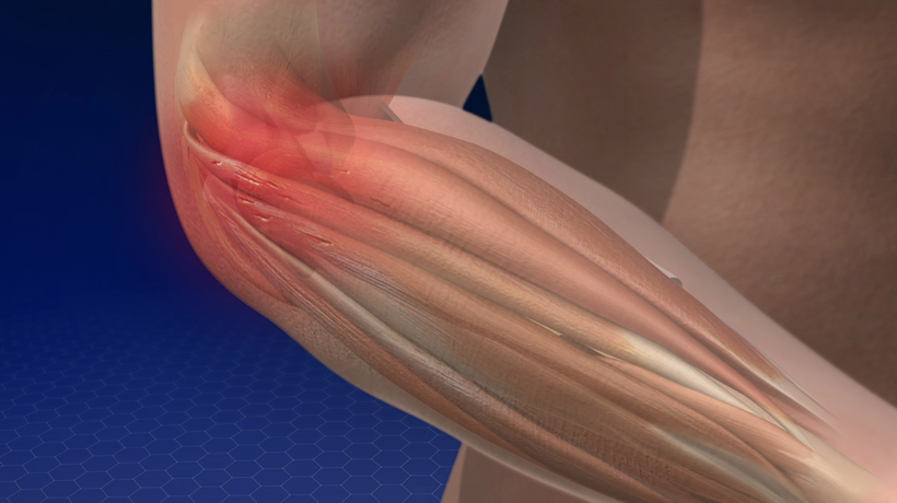 Lateral Epicondylitis (Tennis Elbow)