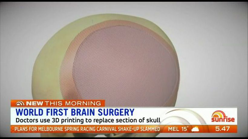 Brisbane man undergoes world first brain surgery