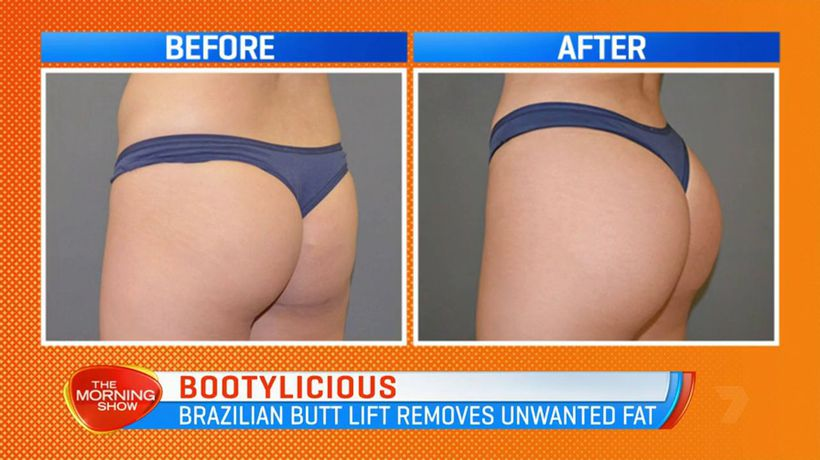 Cosmetic surgeries for the perfect butt, back or thighs