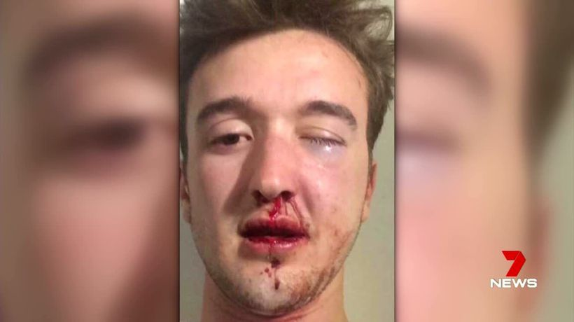Coward punch attacker avoids jail time