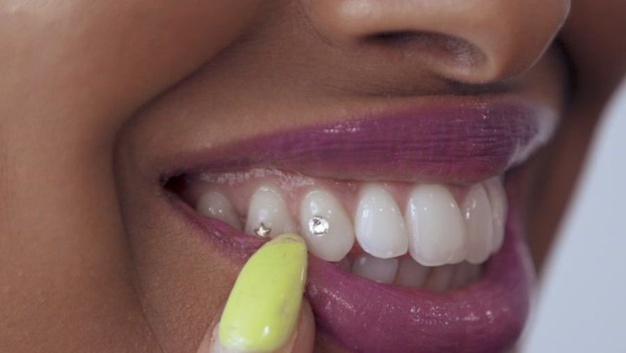 Celebrities love blinging out their smiles with tooth gems