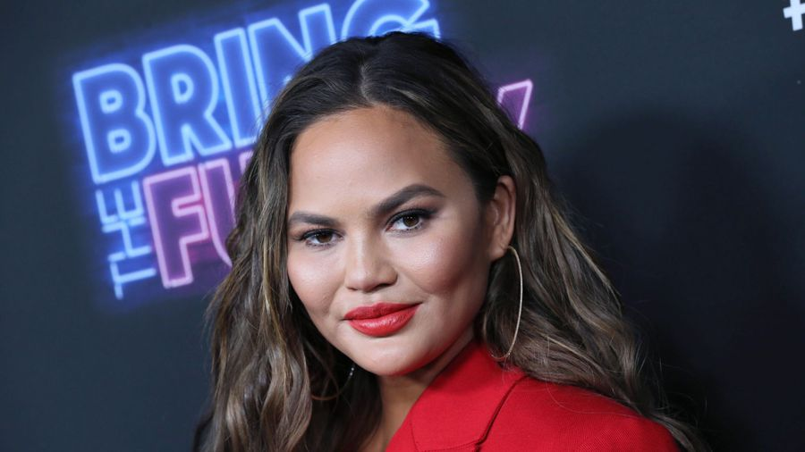 Chrissy Teigen's lip swells up as she battles altitude sickness
