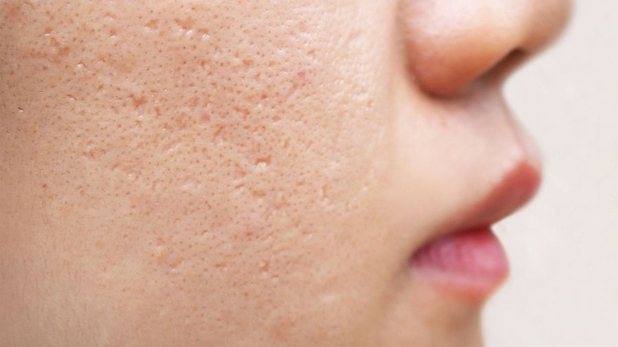 AVITA Medical study shows RECELL helps acne scars