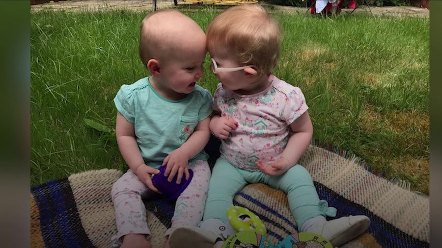 Twins share touching bond as genetic condition affects just one of them
