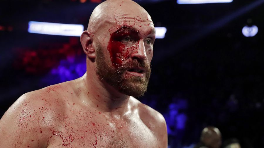 Tyson Fury overcomes deep cut to take points victory over Otto Wallin