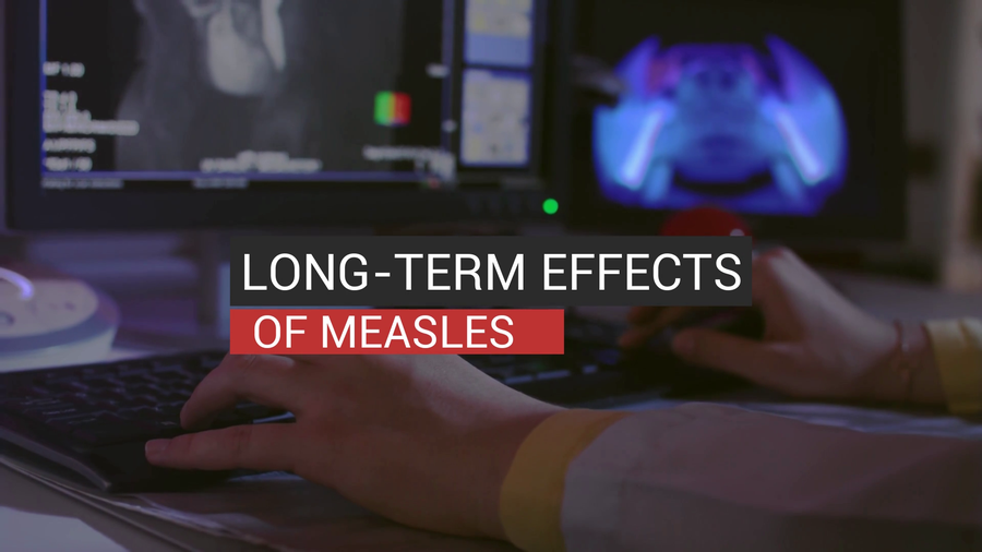 Long-Term Immune System Effects Of Measles