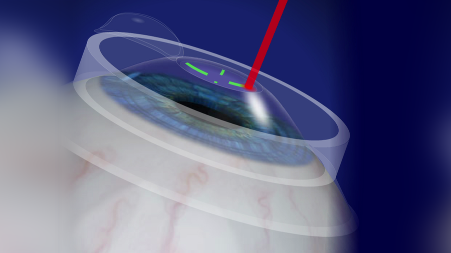 LASIK with the VISX CustomVue System