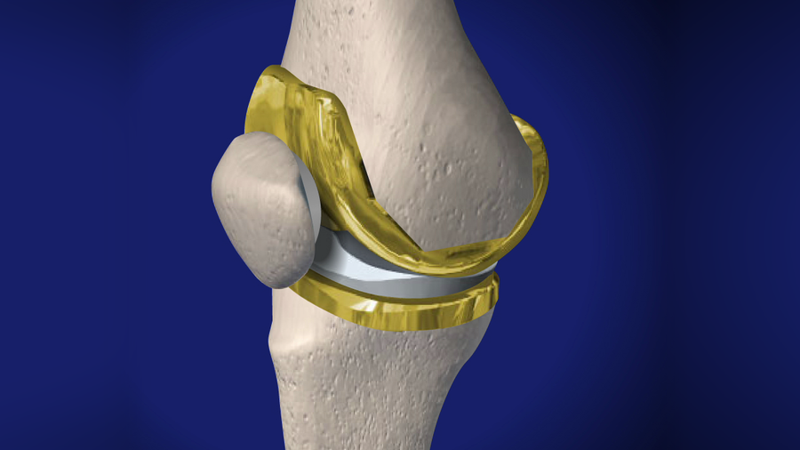 Total Knee Replacement (Uncemented)