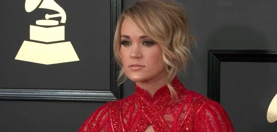 Carrie Underwood shows off scar from freak accident